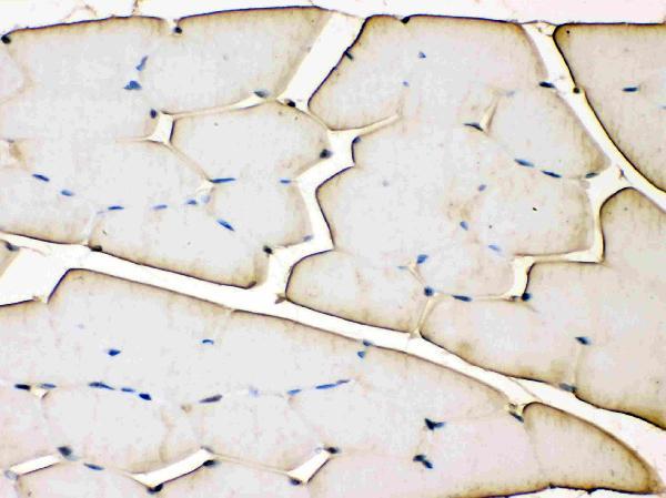 /antibody/ma1098-1-IHC-anti-troponin-t-antibody-monoclonal-jlt-12.jpg