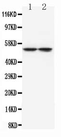 /antibody/ma1099-1-WB-anti-tryptophan-hydroxylase-antibody-monoclonal-wh-3.jpg