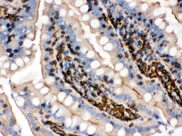 Alanin aminotransferaz artar - organlarda iltihaplı ve distrofik süreçlerin bir belirtisi 5
