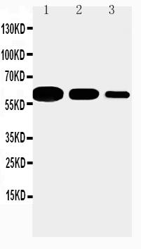 Anti-CD40 antibody, PA1019, Western blotting<br>Lane 1: Recombinant Mouse CD 40 Protein 10ng<br>Lane 2: Recombinant Mouse CD 40 Protein 5ng<br>Lane 3: Recombinant Mouse CD 40 Protein 2.5ng