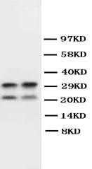 /antibody/pa1050-1-WB-anti-myelin-basic-protein-antibody.jpg