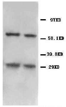 Anti-BNIP3 antibody, PA1057, Western blotting<br>All lanes: Anti BNIP3 (PA1057) at 0.5ug/ml<br>Lane 1: HELA Whole Cell Lysate at 40ug<br>Lane 2: MM231Whole Cell Lysate at 40ug<br>Predicted bind size: 22KD<br>Observed bind size: 30KD