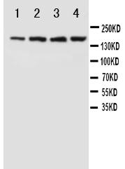 Anti-NMDAR2B antibody, PA1059, Western blotting<br>Lane 1: Rat Brain Tissue Lysate<br>Lane 2: Rat Brain Tissue Lysate<br>Lane 3: Mouse Brain Tissue Lysate<br>Lane 4: Mouse Brain Tissue Lysate<br>