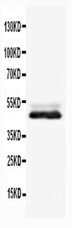 Anti-NSE antibody, PA1061, Western blotting<br>WB: Rat Brain Tissue Lysate
