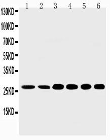 Anti-Sonic Hedgehog antibody, PA1072-1, Western blotting<br>Lane 1: Rat Liver Tissue Lysate<br>Lane 2: Rat Intestine Tissue Lysate<br>Lane 3: HELA Cell Lysate<br>Lane 4: A549 Cell Lysate<br>Lane 5: SMMC Cell Lysate<br>Lane 6: MM231 Cell Lysate