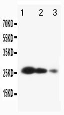 Anti-TIMP3 antibody, PA1077, Western blotting<br>Lane 1: Recombinant Human TIMP3 Protein 10ng<br>Lane 2: Recombinant Human TIMP3 Protein 5ng<br>Lane 3: Recombinant Human TIMP3 Protein 2.5ng