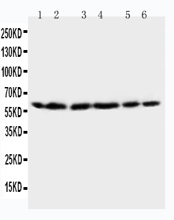 Anti-HSP60 antibody, PA1106, Western blottingLane 1: Rat Brain Tissue LysateLane 2: Rat Liver Tissue LysateLane 3: CEM Cell LysateLane 4: HELA Cell LysateLane 5: SMMC Cell LysateLane 6: COLO320 Cell Lysate