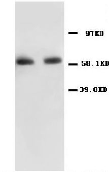 Anti-NF-kB p65 antibody, PA1125, Western blotting<br>All lanes: Anti NF-kB p65 (PA1125) at 0.5ug/ml<br>Lane 1: Human Colon Cancer Tissue Lysate at 50ug<br>Lane 2: HELA Whole Cell Lysate at 40ug<br>Predicted bind size: 65KD<br>Observed bind size: 65KD