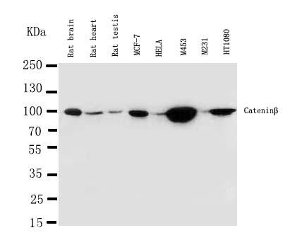 /antibody/pa1212-1-1-WB-anti-beta-catenin-antibody.jpg