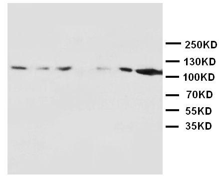 Anti-NMDAR1 antibody, PA1222, Western blotting<br>Lane 1: Rat Brain Tissue Lysate<br>Lane 2: Rat Brain Tissue Lysate<br>Lane 3: Rat Liver Tissue Lysate<br>Lane 4: Rat Heart Tissue Lysate<br>Lane 5: MM453 Cell Lysate<br>Lane 6: MM231 Cell Lysate<br>Lane 7: HELA Cell Lysate