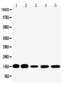 Anti-liver FABP antibody, PA1229-1, Western blotting<br>Lane 1: Rat Liver Tissue Lysate<br>Lane 2: Rat Kidney Tissue Lysate<br>Lane 3: HELA Cell Lysate<br>Lane 4: NEURO Cell Lysate<br>Lane 5: SMMC Cell Lysate