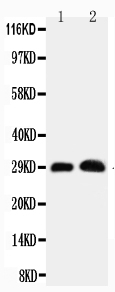 Anti-Aquaporin 5 antibody, PA1230, Western blotting<br>Working concentration: 0.5μg/ml<br>Lane 1: Rat Lung Tissue Lysate<br>Lane 2: Rat Testis Tissue Lysate