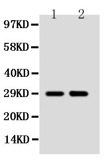 /antibody/pa1235-1-WB-anti-ssx2-antibody.jpg