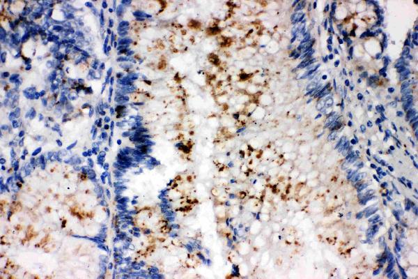 /antibody/pa1235-2-IHC-anti-ssx2-antibody.jpg