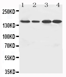 Anti-ROCK2 antibody, PA1242, Western blotting<br>Lane 1: MCF-7 Cell Lysate<br>Lane 2: HELA Cell Lysate<br>Lane 3: SMMC Cell Lysate<br>Lane 4: MM453 Cell Lysate