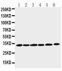 Anti-Cyclin D1 antibody, PA1245-1, Western blotting<br>Lane 1: Rat Testis Tissue Lysate<br>Lane 2: Rat Ovary Tissue Lysate<br>Lane 3: Rat Brain Tissue Lysate<br>Lane 4: HELA Cell Lysate<br>Lane 5: MM231 Cell Lysate<br>Lane 6: SW620 Cell Lysate