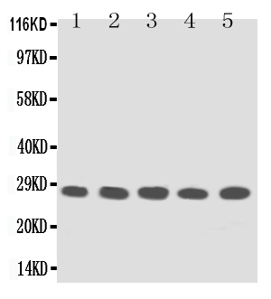 Anti-TFPI2 antibody, PA1248, Western blotting