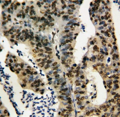 /antibody/pa1305-2-IHC-anti-tnfaip1-antibody.jpg