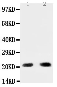 Anti-PUMA antibody, PA1313, Western blotting<br>All lanes: Anti PUMA(PA1313) at 0.5ug/ml<br>Lane 1: HELA Whole Cell Lysate at 40ug<br>Lane 2: Rat Kidney Tissue Lysate at 50ug<br>Predicted bind size: 21KD<br>Observed bind size: 21KD