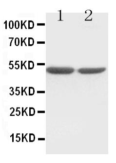 /antibody/pa1318-1-WB-anti-c-fos-antibody.jpg