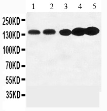 /antibody/pa1321-1-WB-anti-trka-antibody.jpg