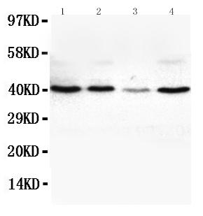 Anti-VEGFD antibody, PA1332, Western blotting<br>Lane 1: SW620 Cell Lysate<br>Lane 2: COLO320 Cell Lysate<br>Lane 3: 6T-CEM Cell Lysate<br>Lane 4: HT1080 Cell Lysate<br>