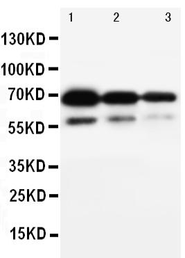 Anti-CD34 antibody, PA1334, Western blotting<br>Lane 1: Recombinant Human CD34 Protein 10ng<br>Lane 2: Recombinant Human CD34 Protein 5ng<br>Lane 3: Recombinant Human CD34 Protein 2.5ng