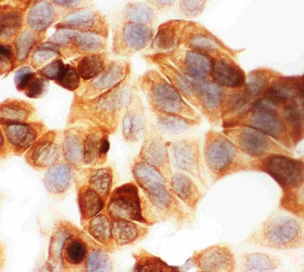 Anti-Cytokeratin 19 antibody, PA1335, ICCICC: MCF-7 Cell
