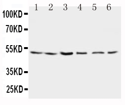 Anti-Presenilin 2 antibody, PA1358, Western blotting<br>Lane 1: Rat Brain Tissue Lysate <br>Lane 2: Rat Brain Tissue Lysate <br>Lane 3: MCF-7 Cell Lysate <br>Lane 4: HELA Cell Lysate <br>Lane 5: SMMC Cell Lysate <br>Lane 6: CEM Cell Lysate <br>