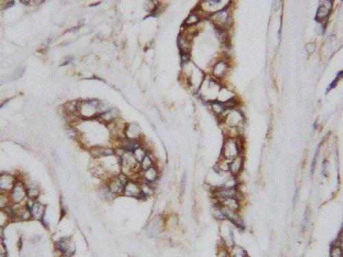 Anti-CDC42 antibody, PA1366, IHC(P)<br>IHC(P): Human Mammary Cancer Tissue
