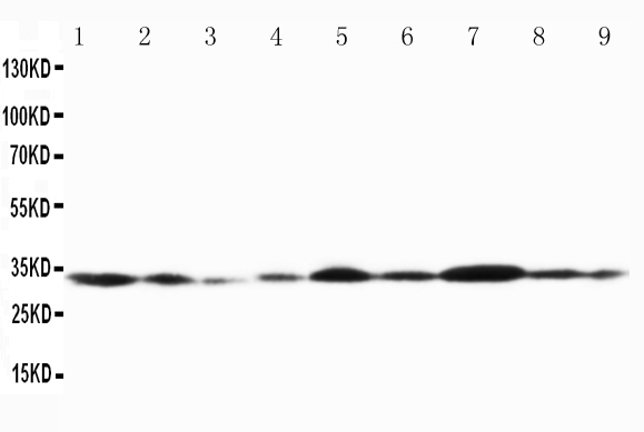Anti-Connexin 32/GJB1 antibody, PA1367, Western blottingLane 1: Rat Cardiac Muscle Tissue LysateLane 2: Rat Cardiac Muscle Tissue LysateLane 3: Rat Skeletal Muscle Tissue LysateLane 4: Rat Brain Tissue LysateLane 5: MCF-7 Cell LysateLane 6: HELA Cell Lysate Lane 7: SMMC Cell Lysate Lane 8: JURKAT Cell Lysate Lane 9: COLO320 Cell Lysate