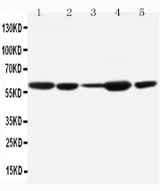 Anti-MDM2 antibody, PA1378, Western blotting<br>Lane 1: Mouse Liver Tissue Lysate<br>Lane 2: Mouse Spleen Tissue Lysate<br>Lane 3: Mouse Brain Tissue Lysate<br>Lane 4: Mouse Thymus Tissue Lysate<br>Lane 5: Mouse Ovary Tissue Lysate<br>