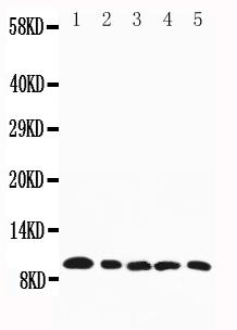 All lanes: Anti-CCL4, PA1379<br>Lane 1: Mouse Spleen Tissue Lysate<br> Lane 2: Mouse Cardiac Muscle Tissue Lysate<br> Lane 3: Mouse Lung Tissue Lysate<br> Lane 4: Mouse Kidney Tissue Lysate<br> Lane 5: Mouse Skeletal Muscle Tissue Lysate