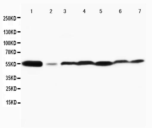 Anti-MAPK8/9 antibody, PA1407, Western blotting<br>Lane 1: Rat Brain Tissue Lysate<br>Lane 2: Rat Thymus Tissue Lysate<br>Lane 3: MCF-7 Cell Lysate<br>Lane 4: HELA Cell Lysate<br>Lane 5: JURKAT Cell Lysate<br>Lane 6: MM231 Cell Lysate<br>Lane 7: CEM Cell Lysate