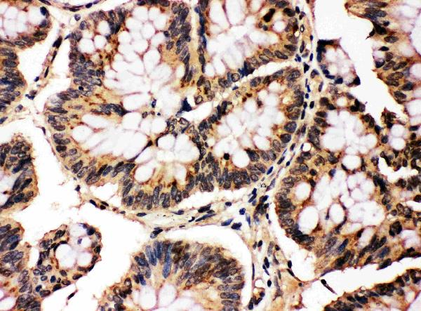 Anti-MAPK8/9 antibody, PA1407, IHC(P)<br>IHC(P): Human Intestinal Cancer Tissue