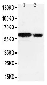 Anti-Src antibody, PA1415, Western blotting<br>Lane 1: Rat Testis Tissue Lysate<br>Lane 2: Rat Brain Tissue Lysate<br>