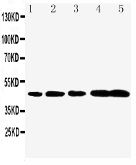 Anti-Caspase-1(P20) antibody, PA1440-1, Western blotting<br>Lane 1: Rat Brain Tissue Lysate<br>Lane 2: Rat Spleen Tissue Lysate<br>Lane 3: Mouse Brain Tissue Lysate<br>Lane 4: Mouse Spleen Tissue Lysate<br>Lane 5: Mouse Testis Tissue Lysate<br>