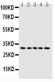 Anti-Caspase-6(P18) antibody, PA1441, Western blotting<br>Lane 1: MCF-7 Cell Lysate<br>Lane 2: HELA Cell Lysate<br>Lane 3: JURKAT Cell Lysate<br>Lane 4: CEM Cell Lysate<br>Lane 5: SW620 Cell Lysate<br>