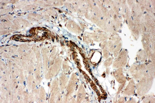 Anti-ADAMTS2 antibody, PA1461, IHC(F)<br>IHC(F): Rat Cardiac Muscle Tissue