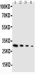Anti-GDNF antibody, PA1465, Western blotting<br>Lane 1: Recombinant Human GDNF Protein 10ng<br>Lane 2: Recombinant Human GDNF Protein 5ng<br>Lane 3: Recombinant Human GDNF Protein 2.5ng<br>Lane 4: Recombinant Human GDNF Protein 1.25ng