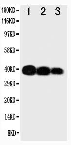 Anti-IL-12(p40) antibody, PA1468, Western blotting<br>Lane 1: Recombinant Human IL-12 Protein 10ng<br>Lane 2: Recombinant Human IL-12 Protein 5ng<br>Lane 3: Recombinant Human IL-12 Protein 2.5ng