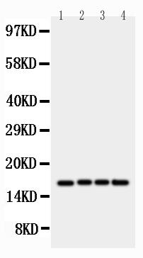 Anti-survivin antibody, PA1474, Western blotting<br>Lane 1: HELA Cell Lysate<br>Lane 2: JURKAT Cell Lysate<br>Lane 3: CEM Cell Lysate<br>Lane 4: COLO320 Cell Lysate<br>