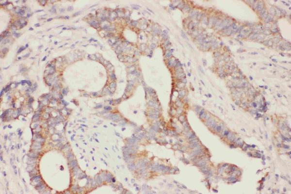 Anti- Fatty Acid Binding Protein 5  antibody, PA1475, IHC(P)IHC(P): Human Intestinal Cancer Tissue