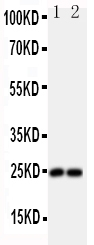 Anti-FGF19 antibody, PA1476, Western blotting<br>All lanes: Anti FGF19 (PA1476) at 0.5ug/ml<br>Lane 1: U87 Whole Cell Lysate at 40ug<br>Lane 2: SMMC Whole Cell Lysate at 40ug<br>Predicted bind size: 24KD<br>Observed bind size: 24KD