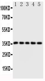 Anti-Fos B antibody, PA1478, Western blotting<br>Lane 1: HT1080 Cell Lysate <br>Lane 2: SW620 Cell Lysate <br>Lane 3: HELA Cell Lysate <br>Lane 4: SMMC Cell Lysate <br>Lane 5: MM453 Cell Lysate<br>