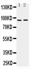 /antibody/pa1479-1-WB-anti-adamts4-antibody.jpg