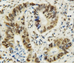 /antibody/pa1483-2-IHC-anti-mta1-antibody.jpg