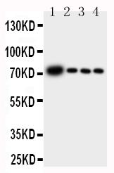 Anti-GCLC antibody, PA1492, Western blotting<br>Lane 1: Rat Brain Tissue Lysate<br>Lane 2: Rat Kidney Tissue Lysate<br>Lane 3: Rat Heart Tissue Lysate<br>Lane 4: Rat Lung Tissue Lysate<br>