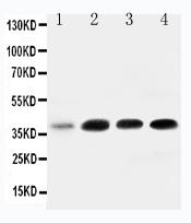 Anti-IGFBP-3 antibody, PA1498, Western blotting<br>All lanes: Anti IGFBP-3 (PA1498) at 0.5ug/ml<br>Lane 1: 293T Whole Cell Lysate at 40ug<br>Lane 2: MCF- 7 Whole Cell Lysate at 40ug<br>Lane 3: A549 Whole Cell Lysate at 40ug<br>Lane 4: SW620 Whole Cell Lysate at 40ug<br>Predicted bind size: 32KD<br>Observed bind size: 40KD