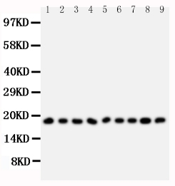 Anti-Ribonuclease A antibody, PA1507, Western blotting<br>All lanes: Anti Ribonuclease A (PA1507) at 0.5ug/ml<br>Lane 1: MCF-7 Whole Cell Lysate at 40ug<br>Lane 2: U87 Whole Cell Lysate at 40ug<br>Lane 3: HELA Whole Cell Lysate at 40ug<br>Lane 4: MM231 Whole Cell Lysate at 40ug<br>Lane 5: JURKAT Whole Cell Lysate at 40ug<br>Lane 6: SMMC Whole Cell Lysate at 40ug<br>Lane 7: COLO320 Whole Cell Lysate at 40ug<br>Lane 8: SW620 Whole Cell Lysate at 40ug<br>Lane 9: CEM Whole Cell Lysate at 40ug<br>Predicted bind size: 18KD<br>Observed bind size: 18KD